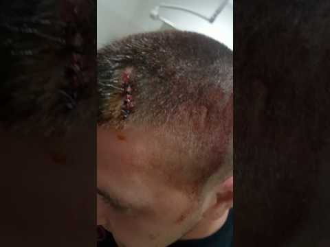 VIDEO SKANDAL/Vëzhguesi i LSI qëllohet me levë në kokë