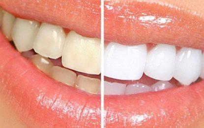 4 mënyra natyrale për të zbardhur dhëmbët në kushte shtëpie
