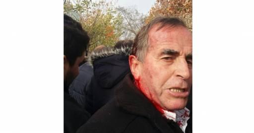 Foto Protestuesi i gjakosur mes tumës vazhdon ende të protestoj